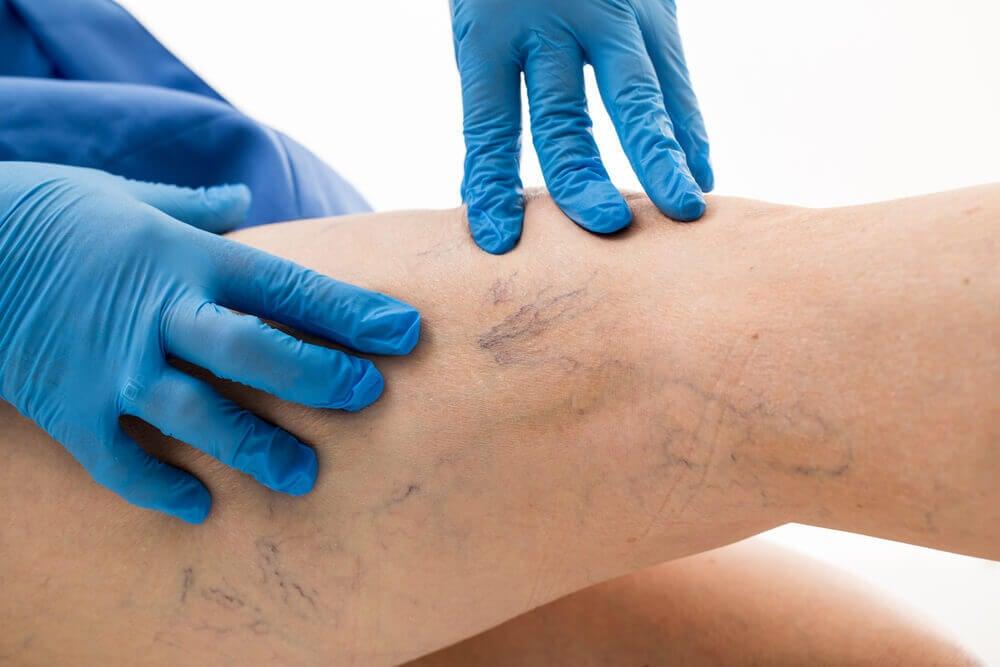 cum de a trata genunchiul în varicoză stea de la varicoză