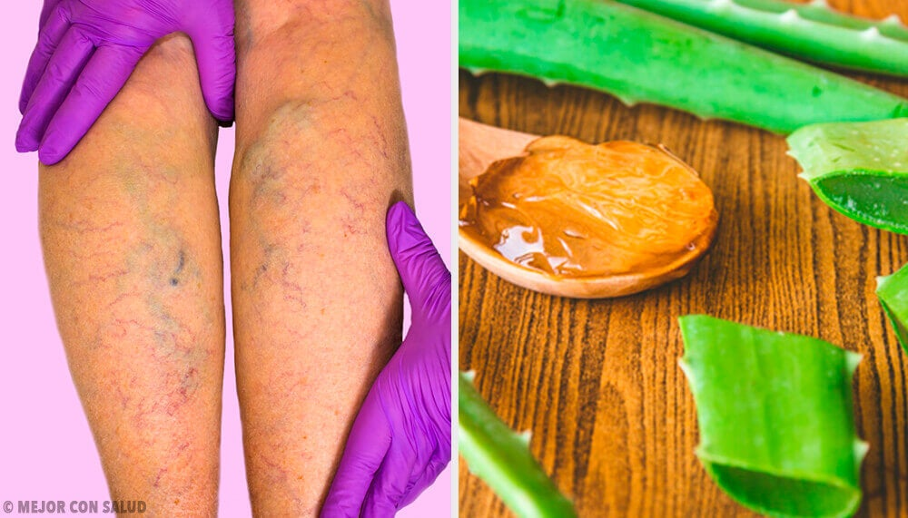 Cure Varicose Veins with this Aloe Vera Remedy