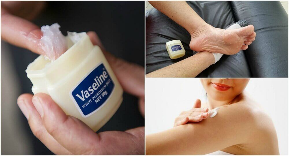 6 Medicinal Uses for Vaseline that You'll Want to Know