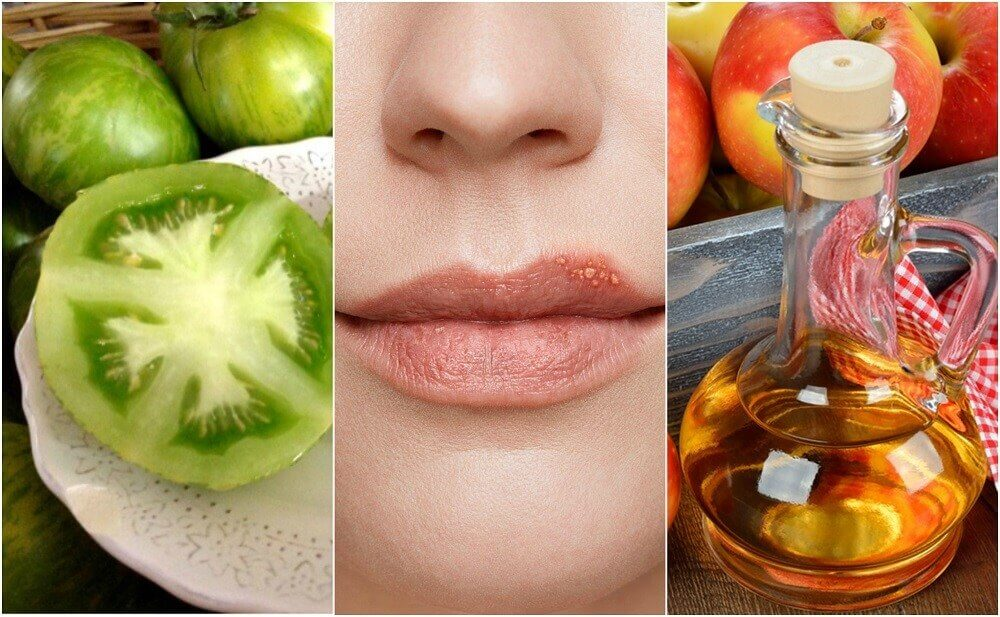Fight Cold Sores with 5 Natural Treatments