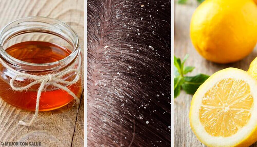 10 Effective Natural Remedies for Dandruff