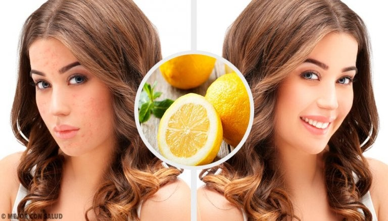 4 Natural Home Remedies to Eliminate Acne Scars