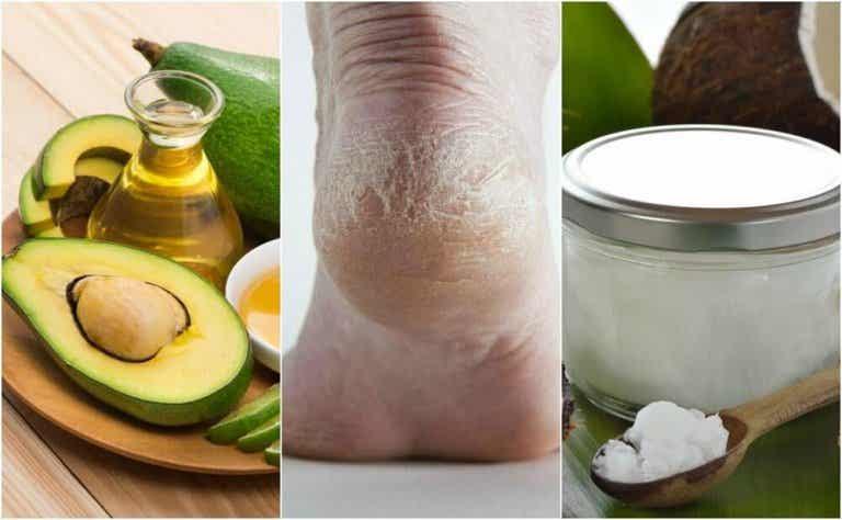 5 Homemade Creams to Moisturize Cracked Heels