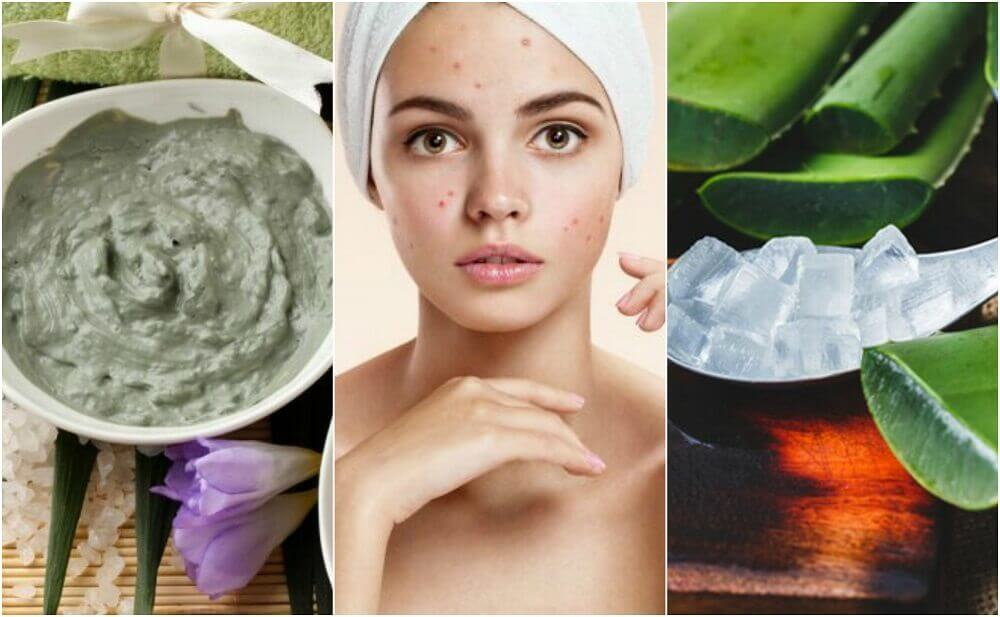 5 Natural Treatments for Facial Acne