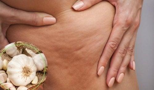 5 Ways to Fight Cellulitis