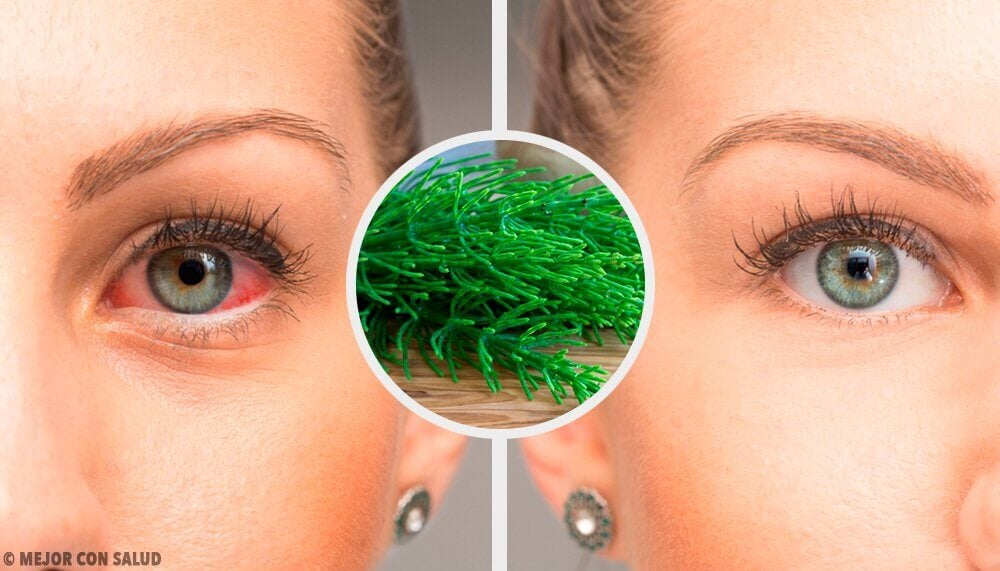7 Recommendations to Fight Pink Eye Naturally