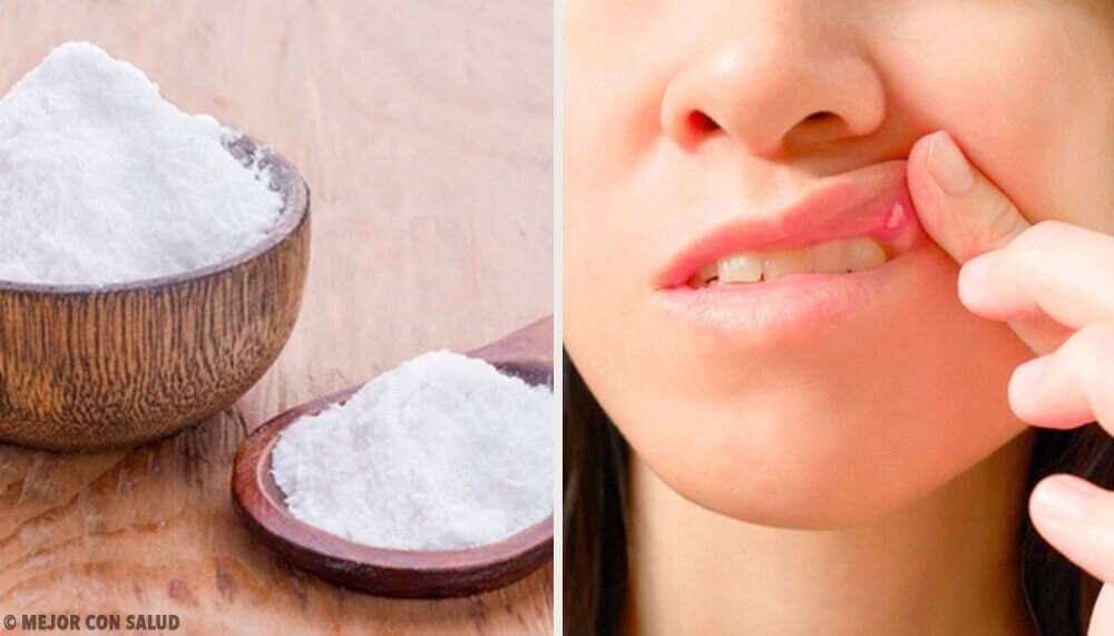 8 Remedies to Heal Mouth Ulcers