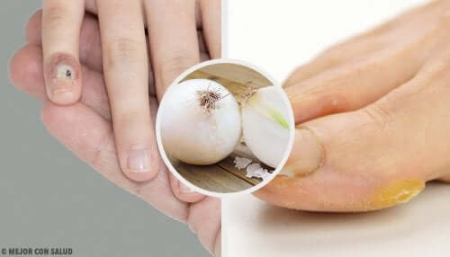 Remove Calluses from Hands and Feet Naturally