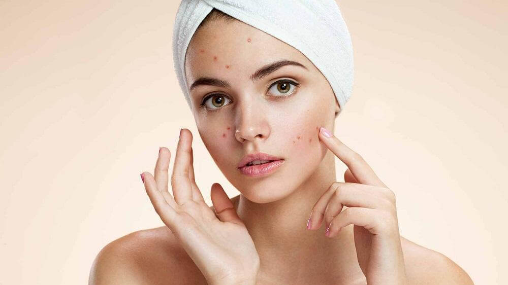 woman with acne on her skin
