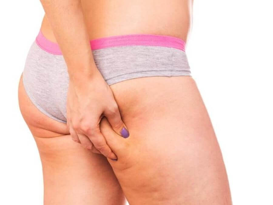 cellulite in woman's thigh