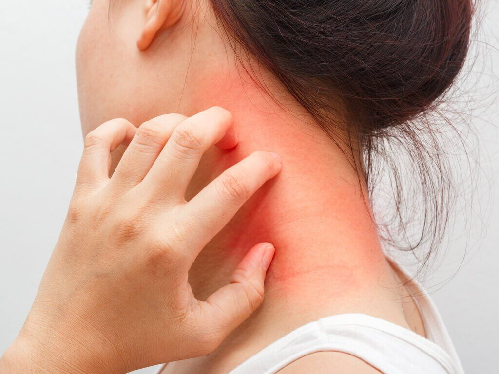 woman stratching her neck riddled with dermatitis