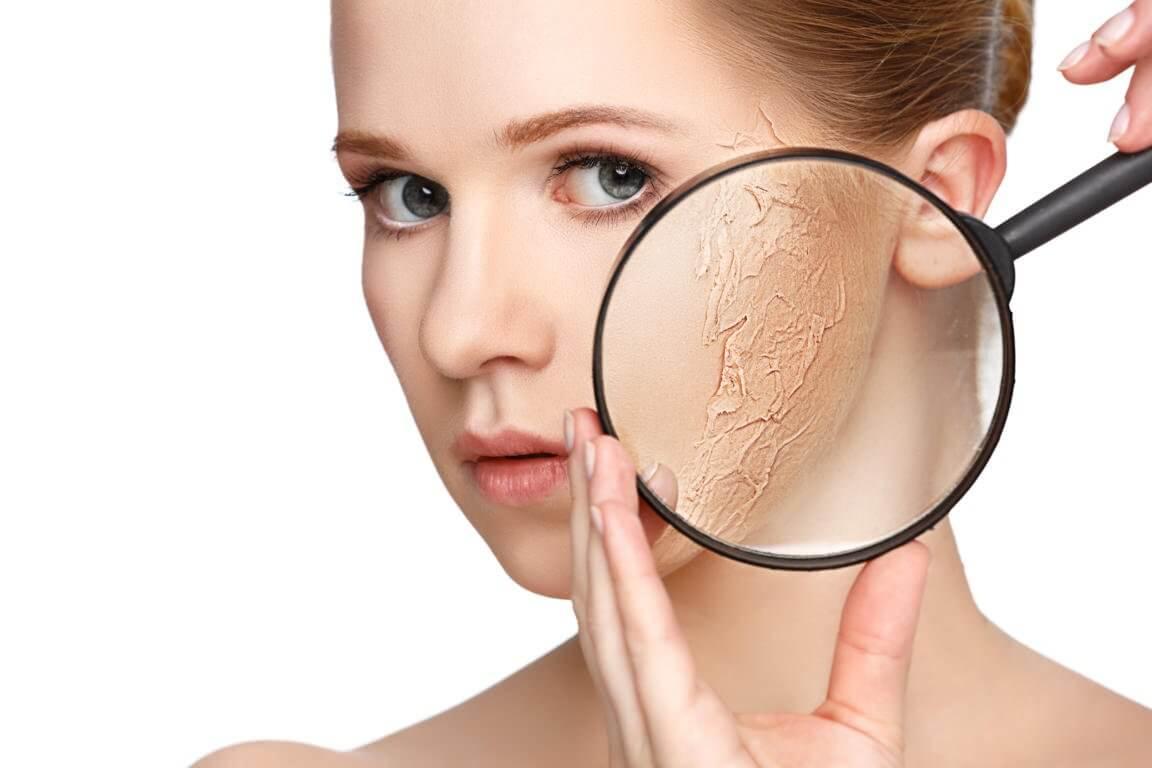 Treat-Dry-Skin