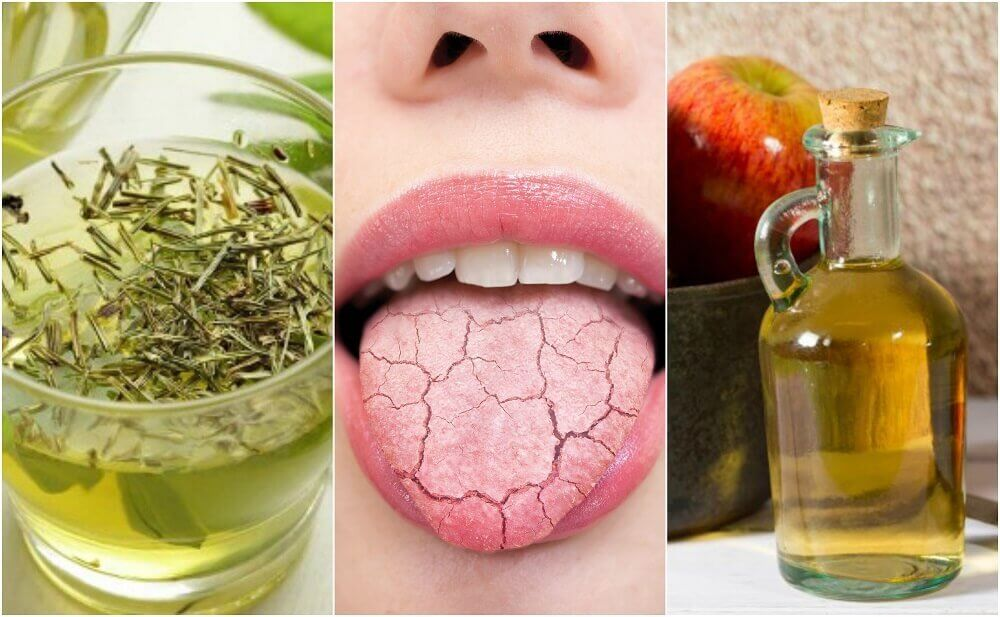 5 Homemade Remedies to Relieve a Dry Mouth