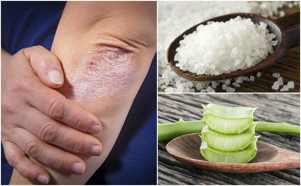 Fight Fungus With These 5 Natural Solutions