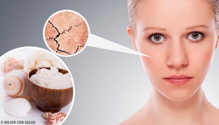 5 Natural Remedies to Completely Get Rid of Dry Skin