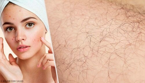 Causes of Hirsutism and Natural Remedies to Treat It