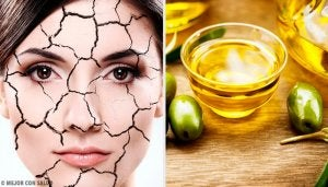 natural ways to relieve dry skin