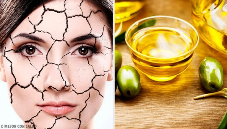 Effortless and Natural Ways to Relieve Dry Skin