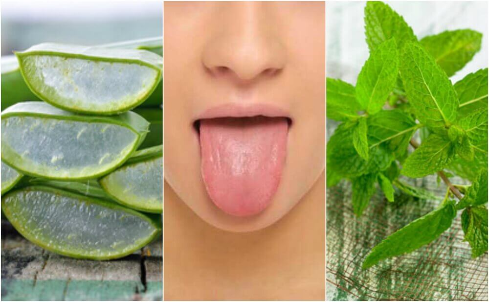 6 Natural Canker Sore Treatments On Your Tongue