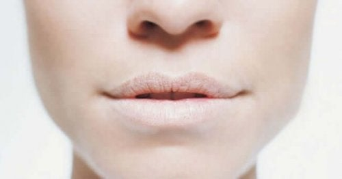 A woman with dry lips.