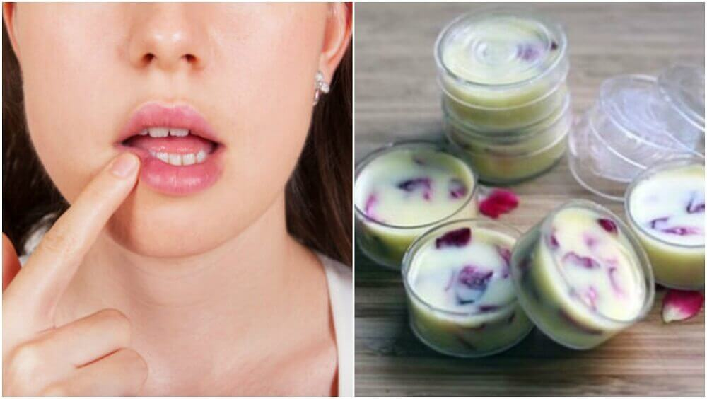 Make a Moisturizing Lip Balm to Protect Your Lips