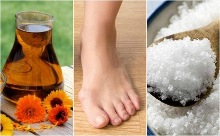 4 Natural Remedies for Bunions
