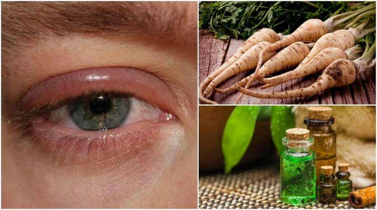 5 Home Remedies To Relieve Swollen Eyelids