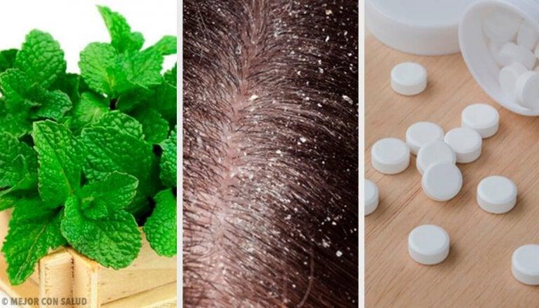 7 Home Remedies to Treat Dandruff