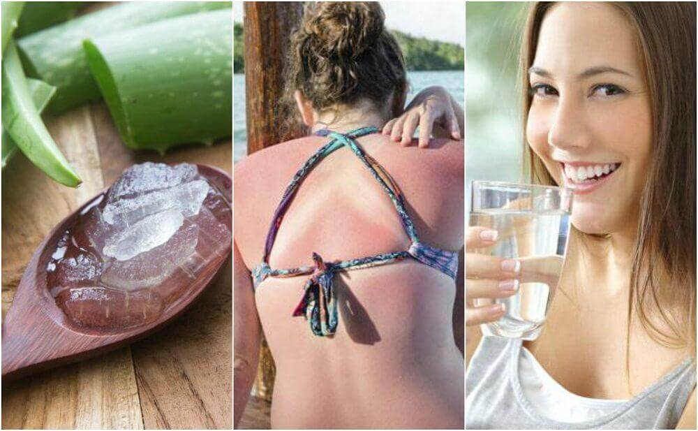 9 Ways to Treat Sunburns