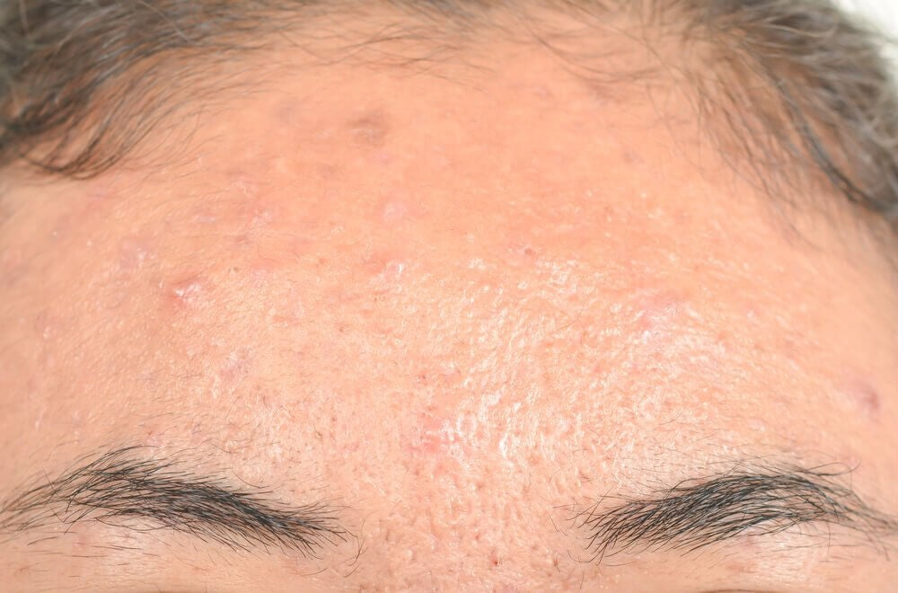 Effective Natural Remedies for Seborrheic Dermatitis