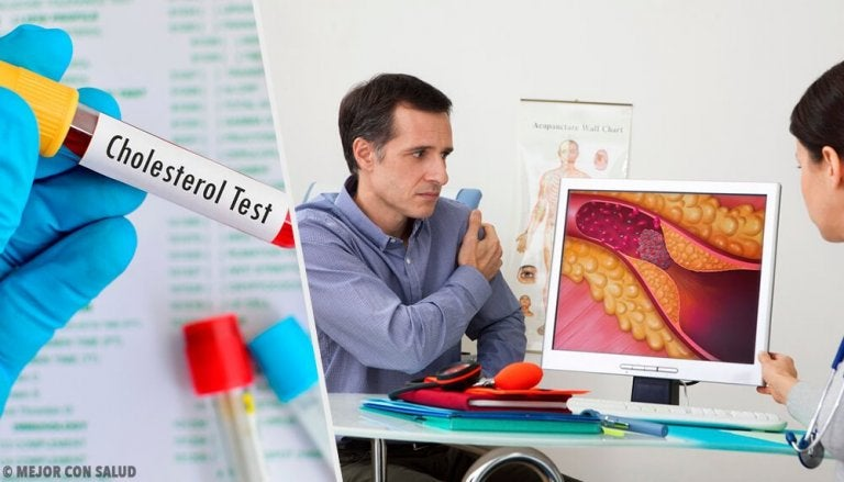 When Should You Start Worrying About Optimal Cholesterol Levels?