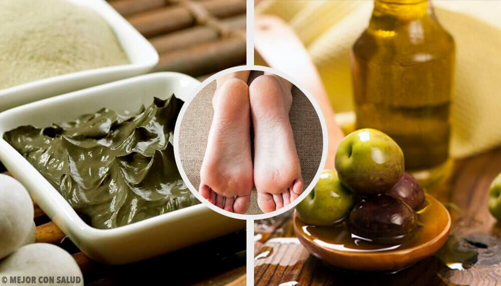 Moisturize Your Dry Heels with These Incredible Home Remedies