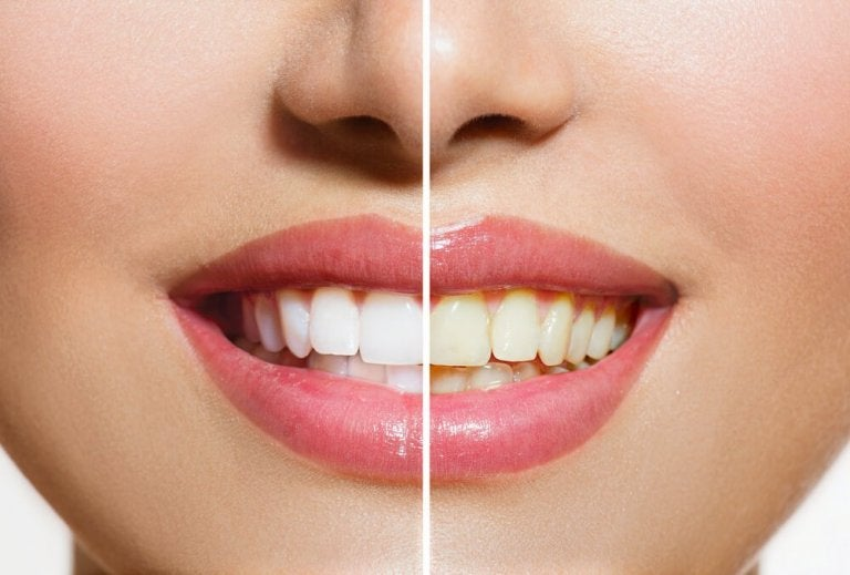 Natural Products That Will Help Whiten Your Teeth
