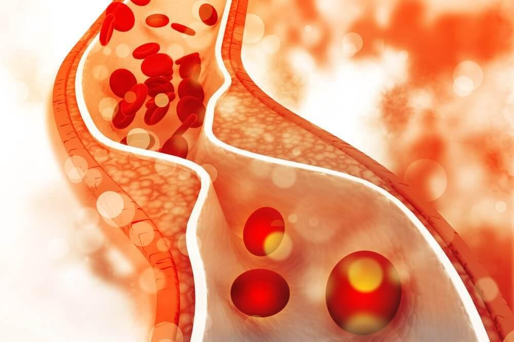 Optimal Cholesterol Levels