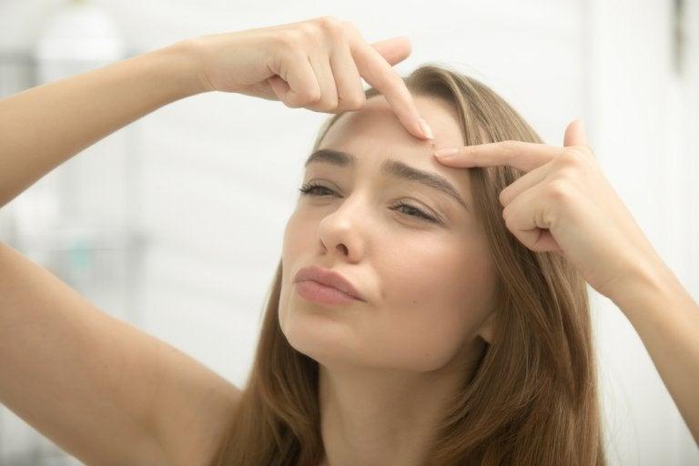 8 Steps for Eliminating Acne