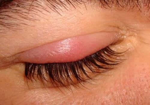 A person with a chalazion.