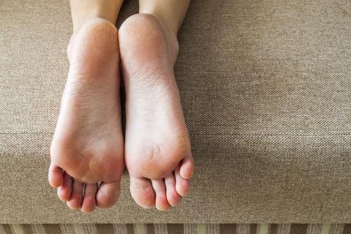 dry heels