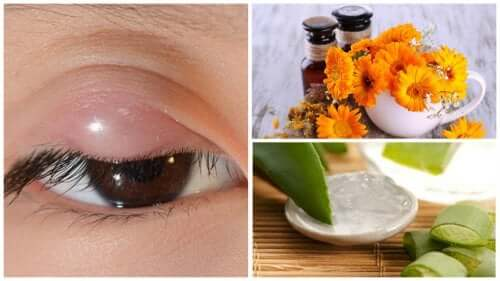 Home remedies for treating styes.