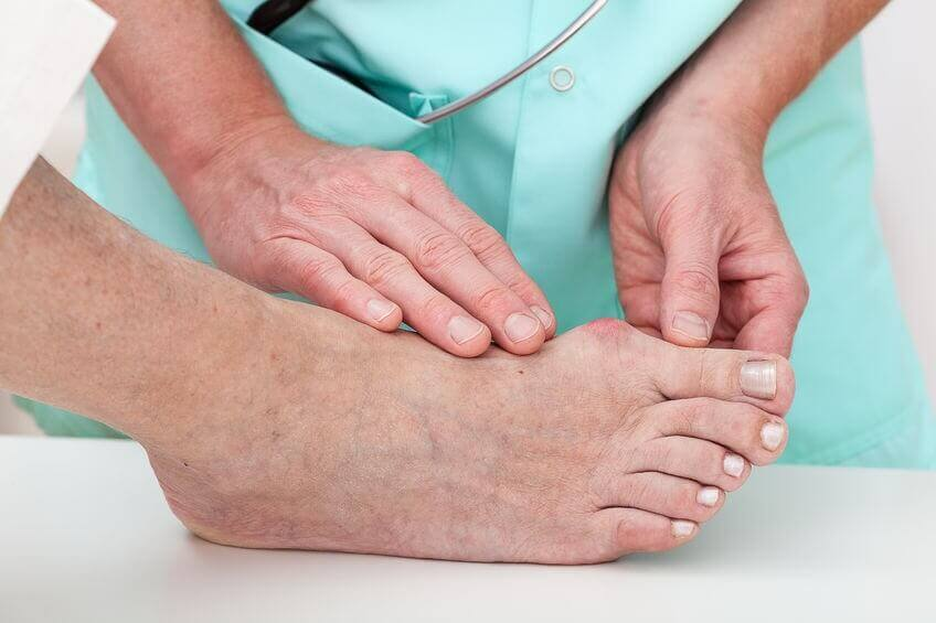 Bunions being examined by a podiatrist.