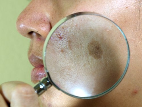 a face problem called melasma