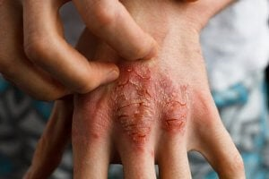 Treating Psoriasis With Sarsaparilla