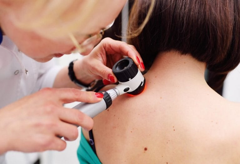 Is Melanoma the Only Serious Type of Skin Cancer?