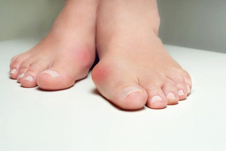 5 Herbal Remedies That Help Fight Bunions