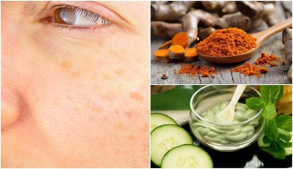 5 Natural Remedies to Prevent Age Spots