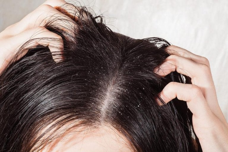 The 6 Best Remedies for Fungal Infections of the Scalp