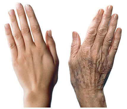 7 Recommendations to Care for Aging Hands