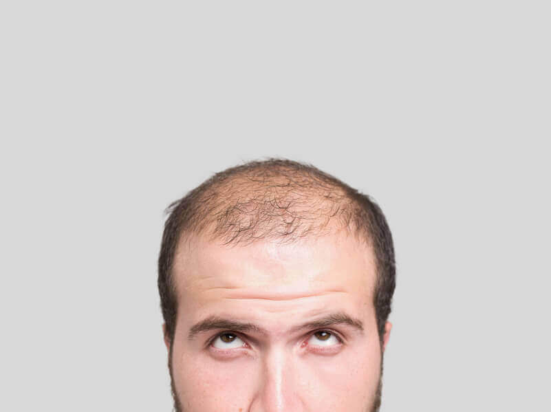 Three Natural Remedies To Treat Balding