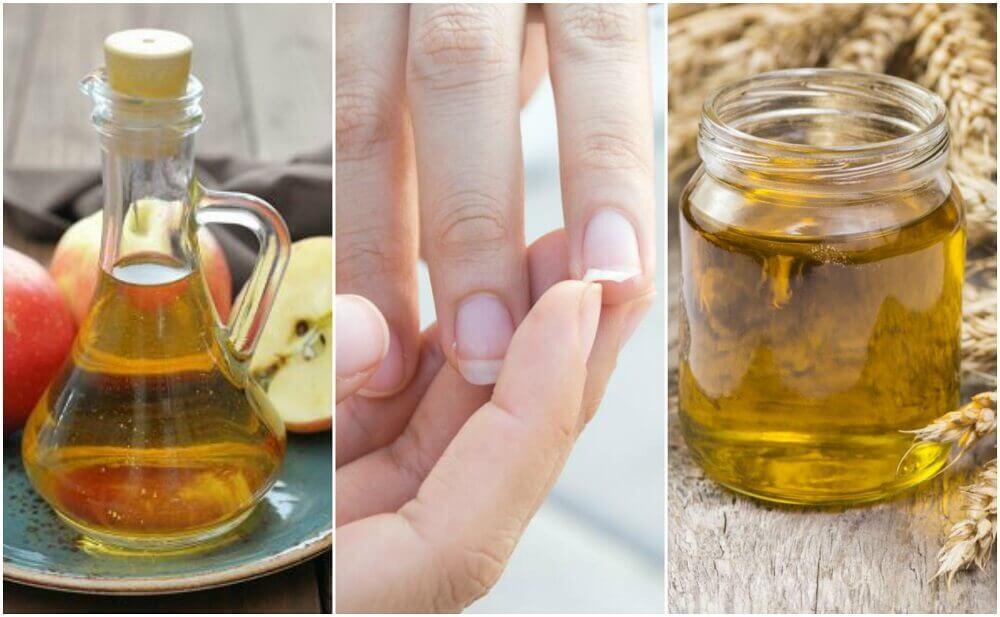 Behandeln Sie spröde Nägel mit diesen 5 Hauptnagelmitteln