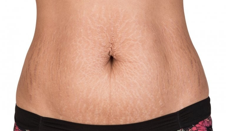 Natural Treatments for Fighting Stretch Marks