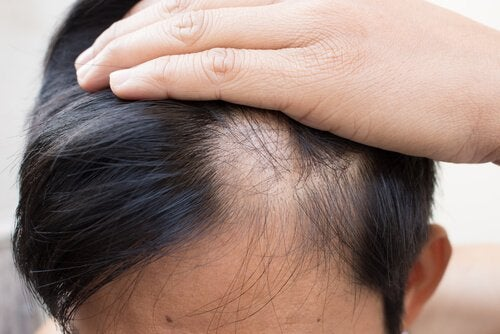 Treat Alopecia